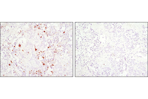 Immunohistochemical analysis of paraffin-embedded HT-29 xenograft using Cleaved Caspase-3 (Asp175) (D3E9) Rabbit mAb in the presence of control peptide (left) or Cleaved Caspase-3 (Asp175) Blocking Peptide #1050 (right).