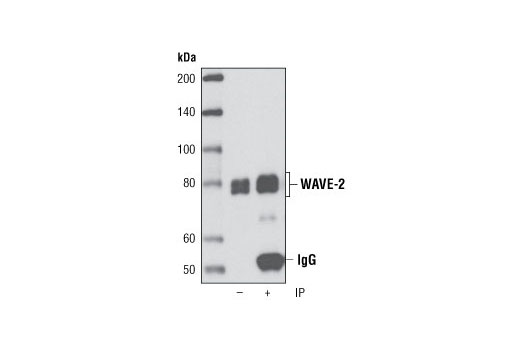 Immunoprecipitation of WAVE-2 from HeLa cells using WAVE-2 (D2C8) XP<sup>®</sup> Rabbit mAb. Western blot was performed using the same antibody. Lane 1 is 5% input.