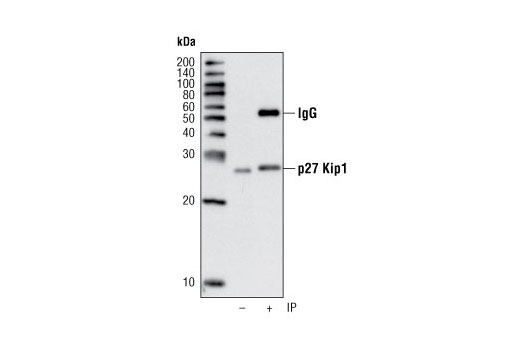 Immunoprecipitation of p27 Kip1 from 293 cells using p27 Kip1 (D69C12) XP<sup>®</sup> Rabbit mAb. Western analysis was performed using the same antibody. Lane 1 is 5% input.