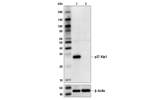 Western blot analysis of Hela Cell Extracts, untreated (-) or p27 Kip1 knock-out (+) using p27 Kip1 (D69C12) XP Rabbit mAb, #3686 (upper) or B-Actin (D6A8) Rabbit mAb #8457 (lower).