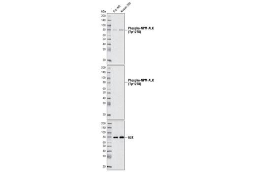 Polyclonal Antibody - Phospho-ALK (Tyr1278) Antibody - Western Blotting, UniProt ID Q9UM73, Entrez ID 238 #3710