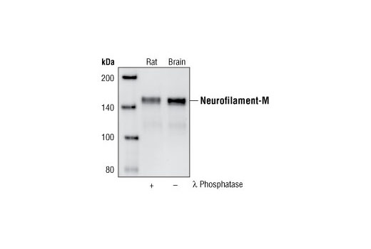 Western blot analysis of extracts from rat brain, untreated or treated with lambda phosphatase, using Neurofilament-M (RMO 14.9) Mouse mAb.