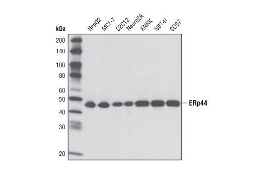Western blot analysis of extracts from various cell types using ERp44 (D17A6) XP<sup>®</sup> Rabbit mAb.
