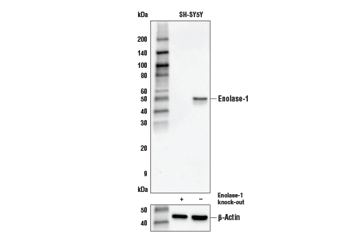 Image 2: Glycolysis II Antibody Sampler Kit