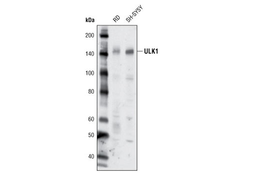 Western blot analysis of extracts from RD and SH-SY5Y cells using ULK1 (R600) Antibody.