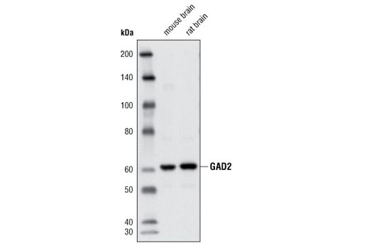 Western blot analysis of extracts from mouse and rat brain using GAD2 Antibody.
