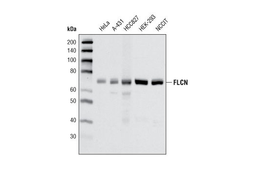 Monoclonal Antibody - FLCN (D14G9) Rabbit mAb - Immunoprecipitation, Western Blotting, UniProt ID Q8NFG4, Entrez ID 201163 #3697, Flcn