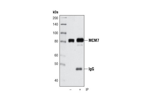 Immunoprecipitation of MCM7 from HeLa cell lysates using MCM7 (D10A11) XP<sup>®</sup> Rabbit mAb followed by western blot using the same antibody. Lane 1 is 5% input.