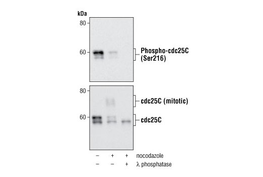 Western blot analysis of extracts from HT-29 cells, untreated, nocodazole-treated or λ phosphatase-treated, using Phospho-cdc25C (Ser216) Rabbit mAb #4901 (upper) and cdc25C (5H9) Rabbit mAb #4688 (lower).