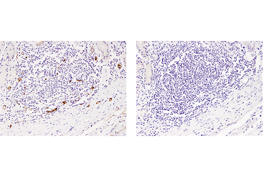 Immunohistochemical analysis of paraffin-embedded human gastric adenocarcinoma, untreated (left) or λ phosphatase treated (right), using Phospho-Ezrin (Thr567)/Radixin (Thr564)/Moesin (Thr558) (48G2) Rabbit mAb.