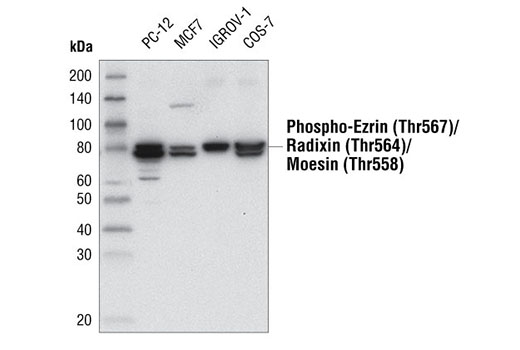Western blot analysis of various cell extracts, using Phospho-Ezrin (Thr567)/Radixin (Thr564)/Moesin (Thr558) (48G2) Rabbit mAb.