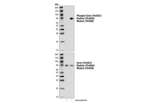 Western blot analysis of Staurosporine #9953 treated (1 μM, 3 hr) or untreated HeLa cells using Phospho-Ezrin (Thr567)/Radixin (Thr564)/Moesin (Thr558) (48G2) Rabbit mAb (upper) and Ezrin/Radixin/Moesin Antibody #3142 (lower).