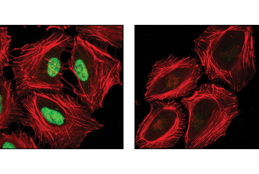 Confocal immunofluorescent analysis of HeLa cells, untreated (left) or λ-phosphatase-treated (right), using Phospho-HDAC3 (Ser424) Antibody (green). Actin filaments were labeled using DY-554 phalloidin (red).