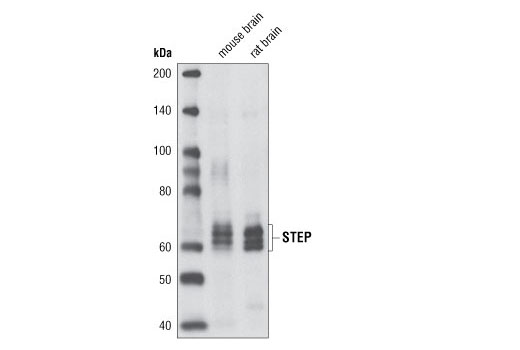 Polyclonal Antibody Protein Tyrosine Phosphatase Activity - count 20