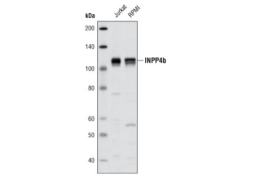 Western blot analysis of extracts from Jurkat and RPMI cells using INPP4b Antibody.