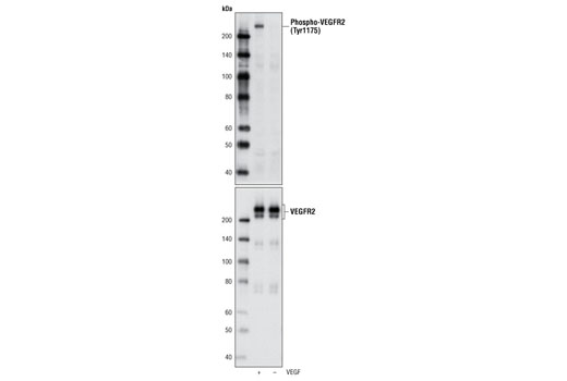 Western blot analysis of extracts from HUVEC, untreated or stimulated with VEGF #9943, using Phospho-VEGF Receptor 2 (Tyr1175) (D5B11) Rabbit mAb (upper) and VEGF Receptor 2 (55B11) Rabbit mAb (lower) #2479.