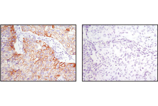 Immunohistochemical analysis of paraffin-embedded HCC827 xenograft, control (left) or λ phosphatase-treated (right), using Phospho-EGF Receptor (Tyr1068) (D7A5) XP<sup>®</sup> Rabbit mAb.