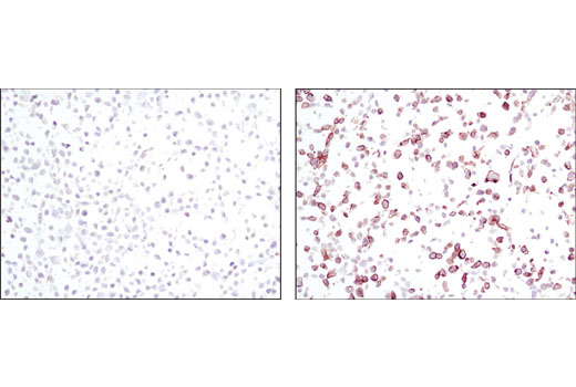 Immunohistochemical analysis using Phospho-EGF Receptor (Tyr1068) (D7A5) XP<sup>®</sup> Rabbit mAb on SignalSlide™ Phospho-EGF Receptor IHC Controls #8102 (paraffin-embedded KYSE450 cell pellets, untreated (left) or EGF-treated (right)).
