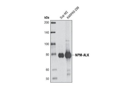 Monoclonal Antibody - ALK (31F12) Mouse mAb - Western Blotting, UniProt ID Q9UM73, Entrez ID 238 #3791