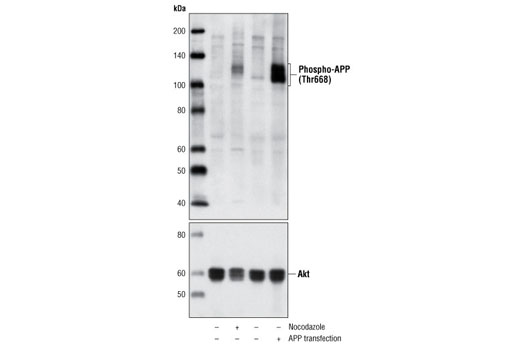 Polyclonal Antibody Immunoprecipitation Visual Learning