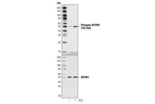 Polyclonal Antibody - Phospho-AP2M1 (Thr156) Antibody - Western Blotting, UniProt ID Q96CW1, Entrez ID 1173 #3843, Ap-2mu2