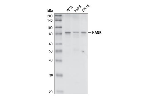 Western blot analysis of extracts from K562 (human), KNRK (rat) and C2C12 (mouse) cell lines, using RANK Antibody.
