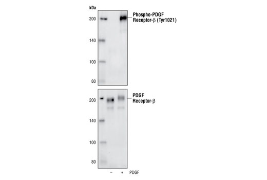 Western blot analysis of extracts of NIH/3T3 cells untreated or treated with PDGF-BB, using Phospho-PDGF Receptor β (Tyr1021) (6F10) Rabbit mAb (upper), or PDGF Receptor β (2B3) Mouse mAb (#3175) (lower).