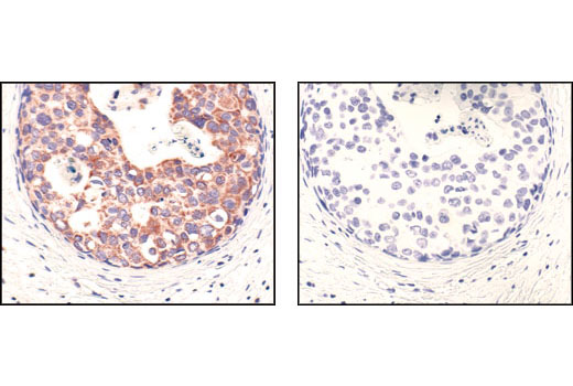 Immunohistochemical analysis of paraffin-embedded human breast carcinoma, using COX IV (3E11) Rabbit mAb in the presence of control peptide (left) or Cox IV Blocking Peptide #1034 (right).