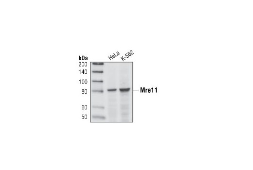 Image 16: Double Strand Breaks (DSB) Repair Antibody Sampler Kit