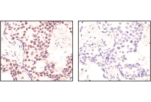 Image 12: Double Strand Breaks (DSB) Repair Antibody Sampler Kit