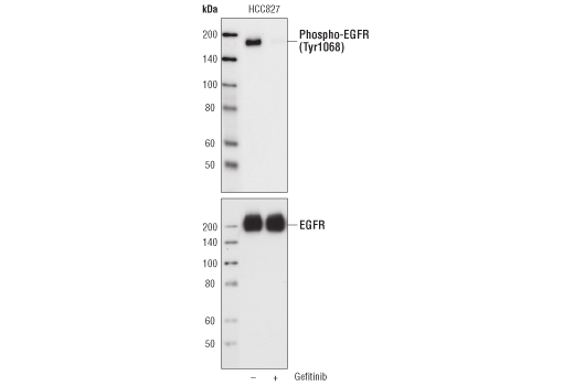 Western blot analysis of EGF Receptor (EGFR1) Mouse mAb (IP Specific) immunoprecipitated samples from Gefitinib-treated and untreated HCC827 cell lysates, using Phospho-EGF Receptor (Tyr1068) Antibody (#2234) (upper) and EGF Receptor Antibody (#2232) (lower).