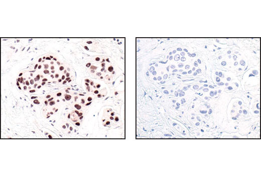 Immunohistochemical analysis of paraffin-embedded human breast carcinoma, using HP1alpha Antibody in the presence of control peptide (left) or HP1 alpha blocking peptide #1004 (right).