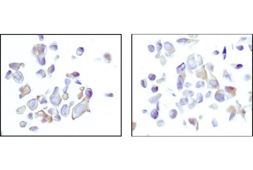 Immunohistochemical analysis using Akt (pan) (11E7) Rabbit mAb on SignalSlide(TM) Phospho-Akt (Ser473) IHC Controls #8101 (paraffin-embedded LNCaP cells, untreated (left) or LY294002-treated (right)). Note the lack of phosphorylated Akt-associated stain at the membrane of the LY294002 treated cells.