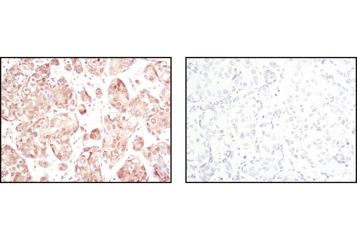 Immunohistochemical analysis of paraffin-embedded human breast carcinoma using Akt (pan) (11E7) Rabbit mAb in the presence of control peptide (left) or Akt (pan) (11E7) Blocking Peptide #1085 (right).