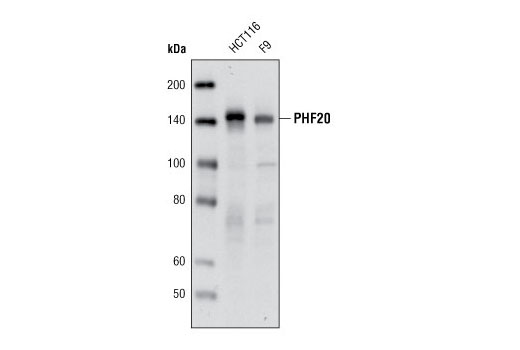 Western blot analysis of extracts from HCT116 and F9 cells using PHF20 (D96F6) XP<sup>®</sup> Rabbit mAb.
