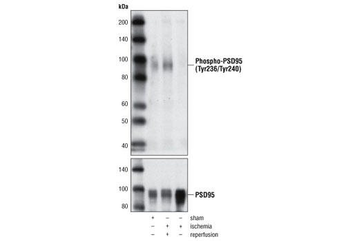 Western blot analysis of extracts from rat brain, either sham operated or subjected to ischemia (15 min) alone or followed by reperfusion (4 hours), using Phospho-PSD95 (Tyr236/Tyr240) Antibody (upper) and PSD95 Antibody #2507 (lower).