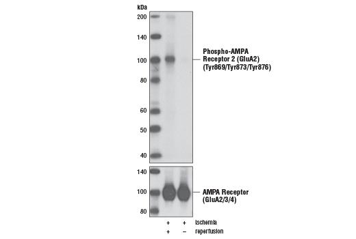 Polyclonal Antibody - Phospho-AMPA Receptor 2 (GluA2) (Tyr869/Tyr873/Tyr876) Antibody, UniProt ID P42262, Entrez ID 2891 #3921