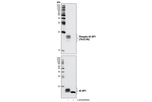 Western Blotting Image 1: Phospho-4E-BP1 (Thr37/46) (236B4) Rabbit mAb (Biotinylated)
