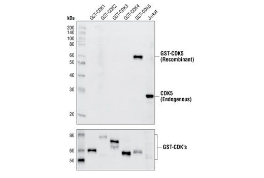 Western blot analysis of recombinant CDK1-5, using CDK5 Antibody (upper) and GST Antibody #2622 (lower).