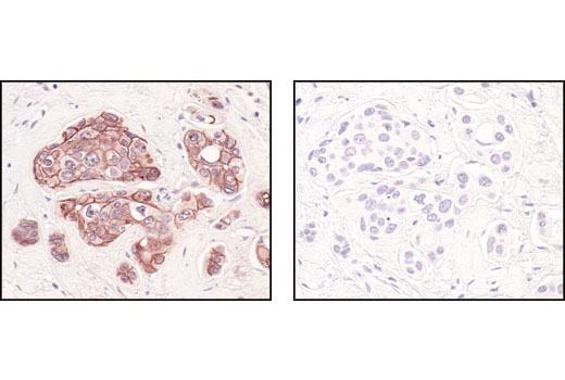 Immunohistochemical analysis of paraffin-embedded human breast carcinoma, using E-Cadherin (24E10) Rabbit mAb in the presence of control peptide (left) or E-Cadherin Blocking Peptide #1050 (right).