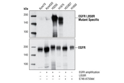 Western blot analysis of extracts from various EGFR expressing cell lines, showing the specificity of detection of mutant EGFR (L858R) protein using EGF Receptor (L858R Mutant Specific) (43B2) Rabbit mAb (upper), and total EGFR control antibody (lower).