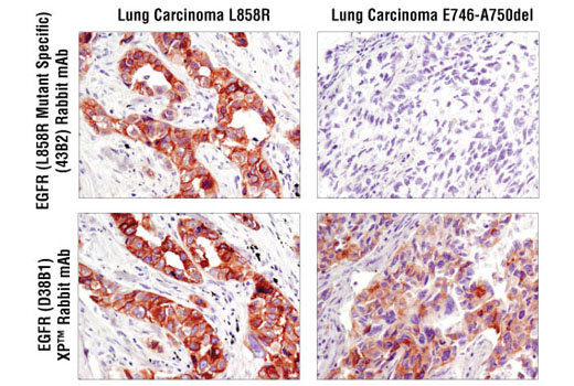Immunohistochemical analysis of paraffin-embedded human lung carcinoma of known mutational status using EGF Receptor (L858R Mutant Specific) (43B2) Rabbit mAb (upper) and total EGFR (D38B1) XP<sup>®</sup> Rabbit mAb #4267 (lower). EGFR L858R positive lung (left), EGFR deletion positive lung sections (right).