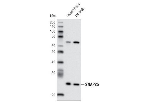 Western blot analysis of extracts from mouse and rat brain using SNAP25 (A195) Antibody.