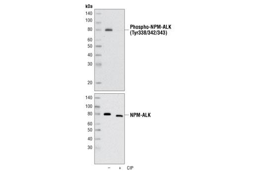 Polyclonal Antibody - Phospho-ALK (Tyr1278/1282/1283) Antibody, UniProt ID Q9UM73, Entrez ID 238 #3983 - Rtk