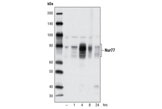 Western blot analysis of of extracts from Jurkat cells, untreated (-) or treated with TPA #4174 (40 nM) and A23187 (2 μM), using Nur77 (D63C5) XP<sup>®</sup> Rabbit mAb.