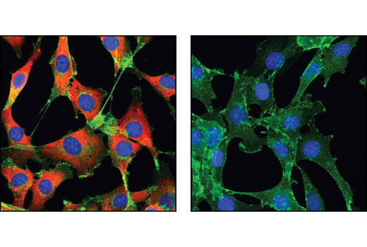 Confocal immunofluorescent analysis of C2C12 cells, treated with either insulin (left) or LY294002, U0126 and Rapamycin (right), using Phospho-S6 Ribosomal Protein (Ser235/236) (D57.2.2E) XP<sup>®</sup> Rabbit mAb (Alexa Fluor<sup>®</sup> 555 Conjugate) (red) and β-Catenin (L54E2) Mouse mAb (Alexa Fluor<sup>®</sup> 488 Conjugate) (green). Blue pseudocolor = DRAQ5<sup>®</sup> #4084 (fluorescent DNA dye).