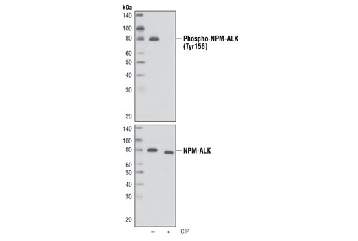 Western blot analysis of extracts from KARPAS-299 cells, untreated or treated with calf intestinal phosphatase (CIP), using Phospho-ALK (Tyr1096) Antibody (upper) and ALK (C26G7) Rabbit mAb #3333 (lower). Cell Line Source: Dr Abraham Karpas at the University of Cambridge.