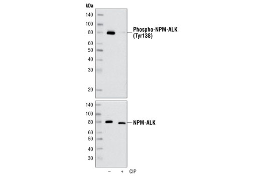 Western blot analysis of extracts from KARPAS-299 cells, untreated or treated with calf intestinal phosphatase (CIP), using Phospho-ALK (Tyr1078) Antibody (upper) and ALK (C26G7) Rabbit mAb #3333 (lower). Cell Line Source: Dr Abraham Karpas at the University of Cambridge.