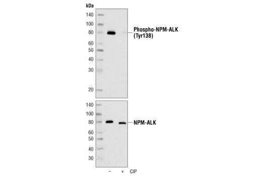 Polyclonal Antibody - Phospho-ALK (Tyr1078) Antibody - Immunoprecipitation, Western Blotting, UniProt ID Q9UM73, Entrez ID 238 #4144, Alk