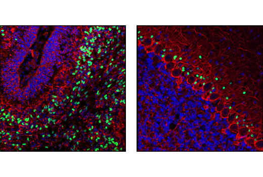 Polyclonal Antibody Western Blotting Forebrain Neuron Development